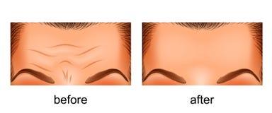 Front de rajeunissement de peau Avant et après Illustration Stock