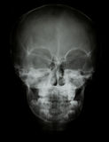 Front face skull x-ray image Stock Photos