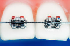 Front teeth braces stock images
