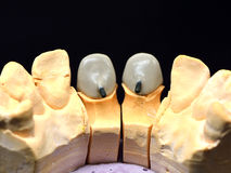 Front teeth dental implant Stock Photos