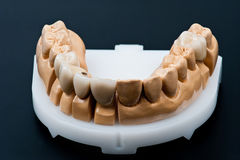 Front view of a Dental prosthesis model  Royalty Free Stock Image