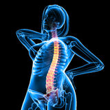 Front view of female skeleton with back pain Royalty Free Stock Images