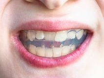 Front view orthodontic trainer for bite correction. Front view of orthodontic trainer for correction of teeth bite in mouth of teenager stock photos