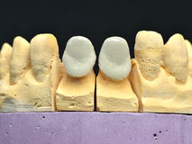 Frontal porcelain teeth implant Stock Image