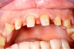 Frontal tänder Arkivbilder