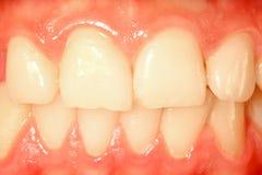 Frontal teeth. Healthy frontal teeth and mucosa royalty free stock photo