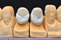 Frontal teeth implant Royalty Free Stock Photo