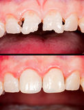 Before - after. Frontal teeth before and after restoration Royalty Free Stock Image
