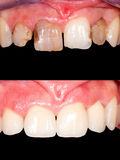 Before - after. Frontal teeth restoration with ceramic crowns, before- after stock image