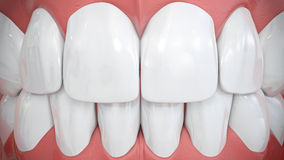 Frontal view on sparkling white anterior teeth. Frontal view on shiny white anterior or front teeth, upper and under jaw Stock Photography