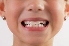 Fronte del bambino con una bocca aperta Fotografia Stock Libera da Diritti