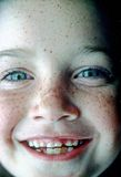 Fronte del Freckle Fotografia Stock Libera da Diritti