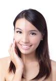 Fronte della donna con la pelle di tan di metà (prima e dopo) Immagini Stock