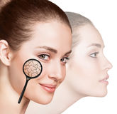 Fronte della giovane donna con pelle asciutta Fotografia Stock