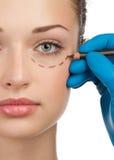 Fronte femminile prima del funzionamento della chirurgia plastica Fotografia Stock