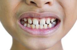 Frontowych zębów przerwy zdjęcia stock