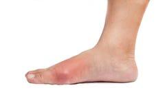 Fuß mit entflammter Gicht Lizenzfreies Stockfoto