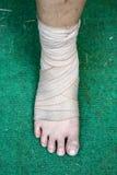 Fuß und Knöchel verletzt mit Verband Lizenzfreie Stockbilder