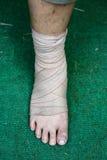 Fuß und Knöchel verletzt mit Verband auf grünem Hintergrund Lizenzfreie Stockbilder