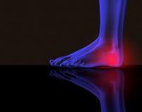Fuß und Schmerz lizenzfreie abbildung