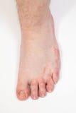 Fußpilze des Athleten Stockbilder