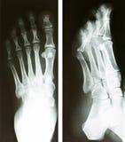 Fußröntgenphotographie Lizenzfreies Stockbild
