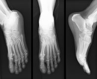 Fußröntgenstrahl lizenzfreies stockfoto