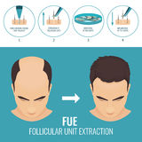 FUE hair loss treatment. Male hair loss treatment with follicular unit extraction. Stages of FUE procedure. Alopecia infographic medical design template for Royalty Free Stock Image