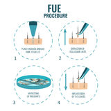 FUE stages treatment Stock Image