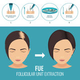 FUE treatment for women Stock Image