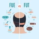 FUE vs FUT royaltyfri illustrationer