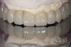 A full arch dental implant bridge with mirror reflection. Showing adult teeth replaced by a porcelain fuse to metal bridge stock photo
