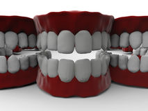 Full dentures closeup. 3D render illustration of multiple full dentures. The composition is isolated on a white background with shadows Stock Image