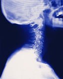 Full neck skull xray (x-ray) stock photo