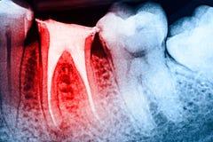 Full Obturation av rotar kanalsystem på tänder Arkivfoto