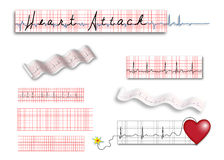 Full page EKG strips with Heart Attack title Royalty Free Stock Images