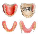 Full size dental prosthesis collection royalty free stock photography