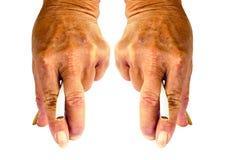 Fumar causa a deficiência orgânica e fumar causa o deteriorati da saúde Imagens de Stock