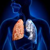 Fumatore contro il non-fumatore - anatomia dei polmoni Immagini Stock