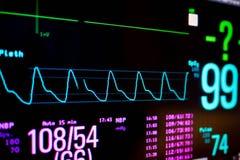 Función normal del corazón en barra del gráfico del pleth del oxímetro del pulso foto de archivo
