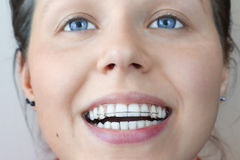 Functional appliance used for orthodontic treatment in woman's Royalty Free Stock Photos