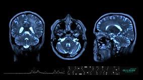 Fundo da animação dos gráficos do movimento do cérebro MRI ilustração royalty free