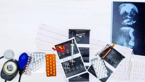 Fundo de drogas médicas, de ferramentas e de indicadores diagnósticos Fotografia de Stock Royalty Free