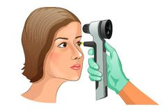 Fundus examination using Ophthalmoscope. Vector illustration of a fundus examination using Ophthalmoscope Stock Image