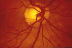 Fundus photography - Normal human retina stock photo