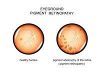 Fundus. pigment retinopathy. Vector illustration of the fundus. pigment retinopathy Stock Images