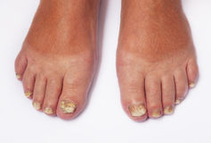 Fungal Disease. Fungoid disease of a nail Stock Photos