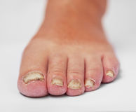 Fungal Disease. Fungoid disease of a nail royalty free stock photo