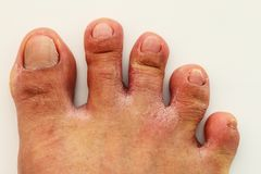 Fungal infection of the area between the toes. That are over from wearing shoes for a long time stock images