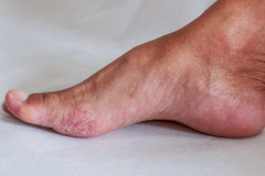 Fungal infection. Foot is a fungal infection royalty free stock photography